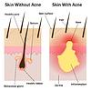 Haut mit und ohne Akne