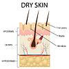 Vektor Cliparts: Schichten der trockenen Haut