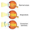 Vektor Cliparts: Astigmatism korrigiert durch Zylinderlinse